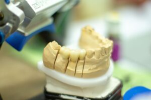 Dental Implants: Reconstruct Your Smile With Implant Dentistry